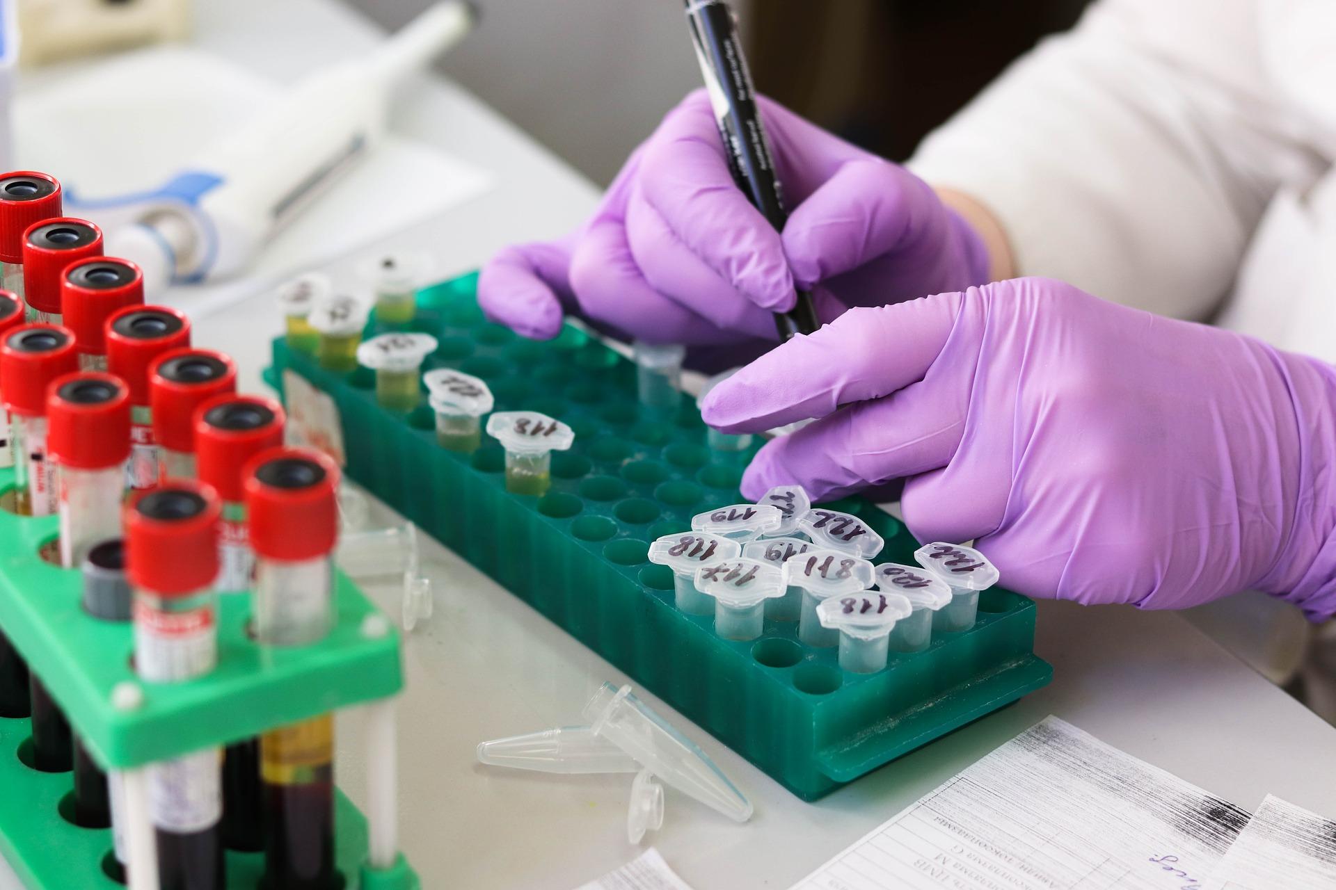 Polska ma swój pierwszy test na koronawirusa - Zdjęcie główne