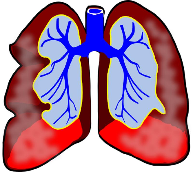 Skontroluj stan swoich płuc! Bezpłatne badania w mieleckim szpitalu - Zdjęcie główne