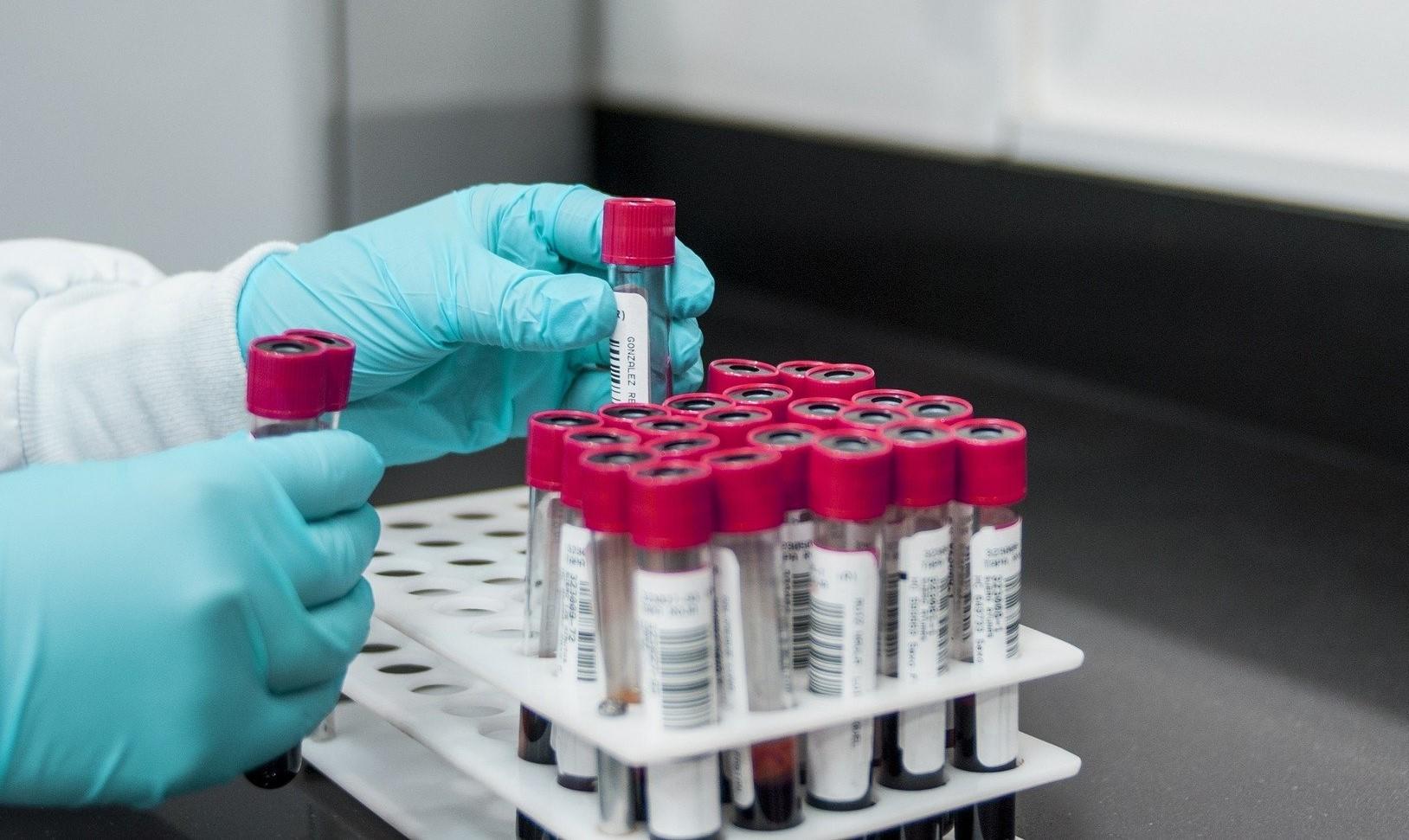 11 listopada nie zrobisz testu na koronawirusa - Zdjęcie główne