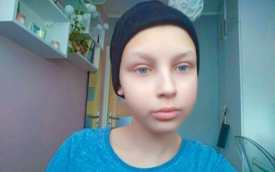 Nastolatka walczy o życie bez szpitali, chemii oraz wypadających garściami włosów! - Zdjęcie główne