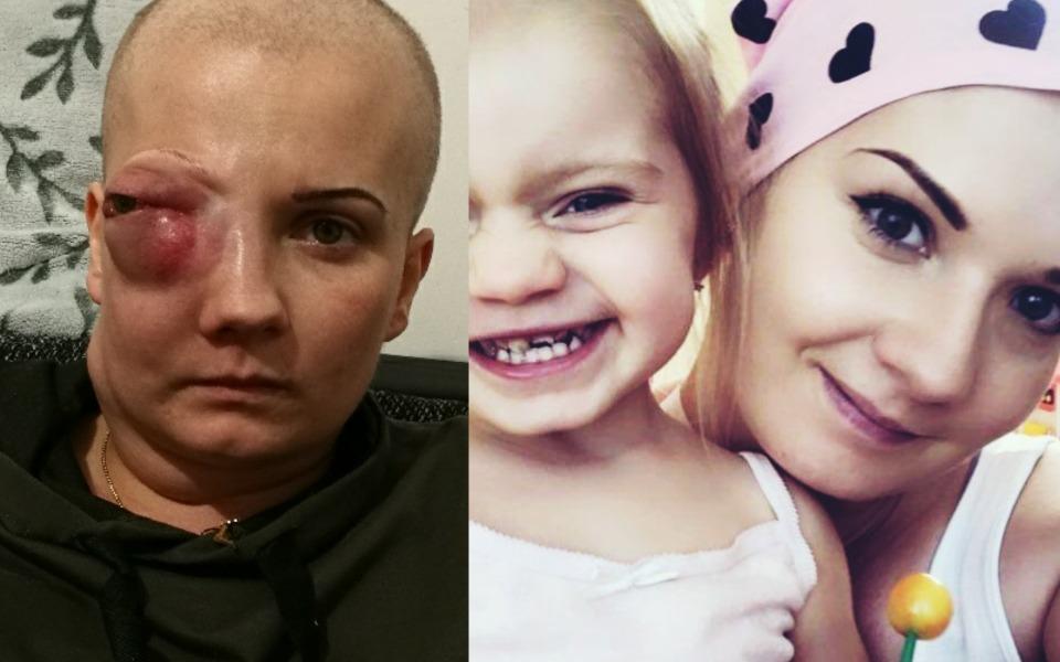 22-latka walczy z nowotworem, aby móc być przy swojej córeczce - Zdjęcie główne