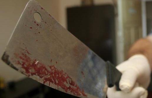 Lekarze ratują odciętą dłoń! Sprawca krwawego ataku jeszcze bez postawionych zarzutów? - Zdjęcie główne