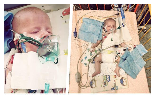 Ma 4 miesiące i walczy o życie! Potrzebna pomoc! - Zdjęcie główne