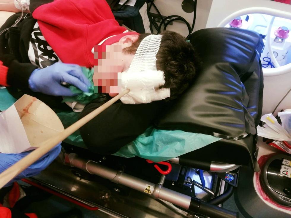 Z PODKARPACIA. Strzała wbita w głowę nastolatka. Został postrzelony z łuku [FOTO] - Zdjęcie główne