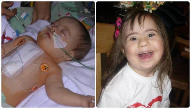 8-letnia dziewczynka przeszła 3 operacje. Czeka ją następna - Zdjęcie główne