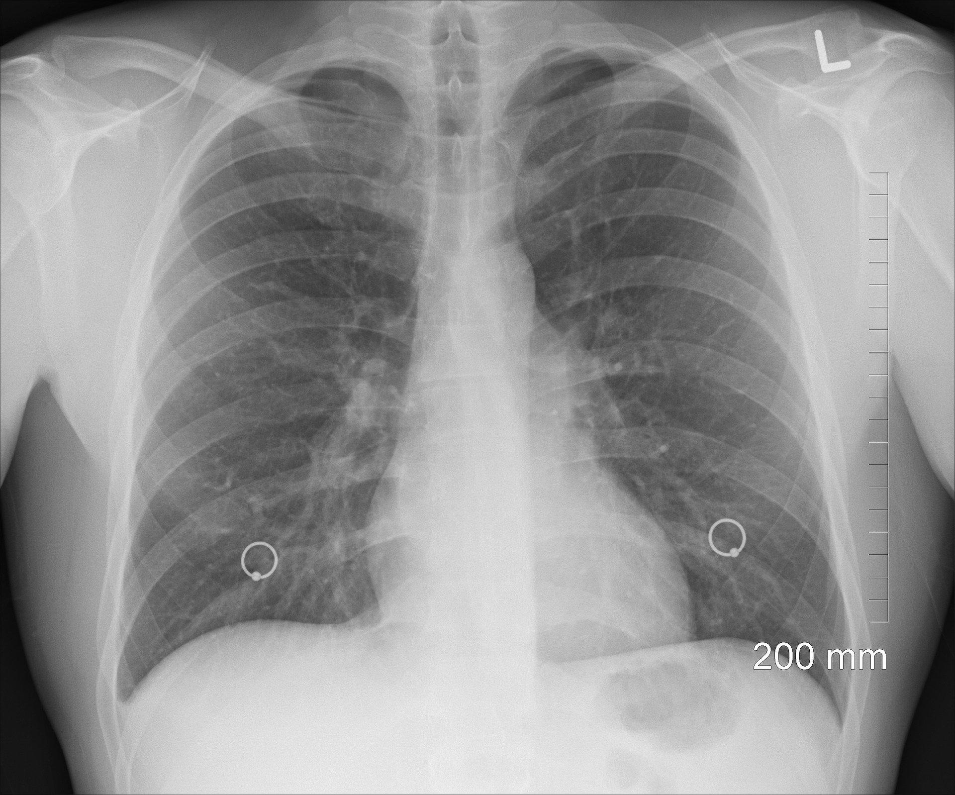 Bezpłatne badania i konsultacje lekarskie dla osób z astmą ciężką na Podkarpaciu - Zdjęcie główne